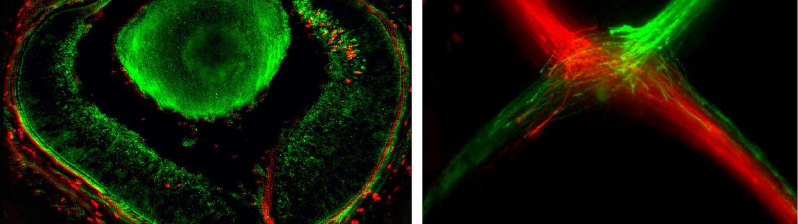 La proteína Zic2 actúa como un interruptor que apaga el programa genético que permite a los axones pasar al otro hemisferio cerebral