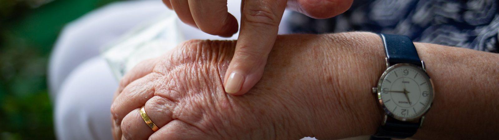 Un compuesto desarrollado por investigadores de la UMH reduce el picor de la psoriasis sin producir efectos secundarios.